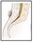 espina bifida oculta