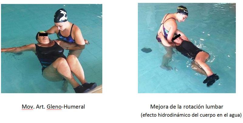 Terapia en el agua para patología de hombro y dolor lumbar