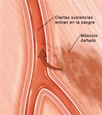 Rabdomiolisis Que Es Sintomas Y Como Prevenirla El Blog De Texum Fisioterapia